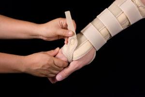 arm hurt from train injury