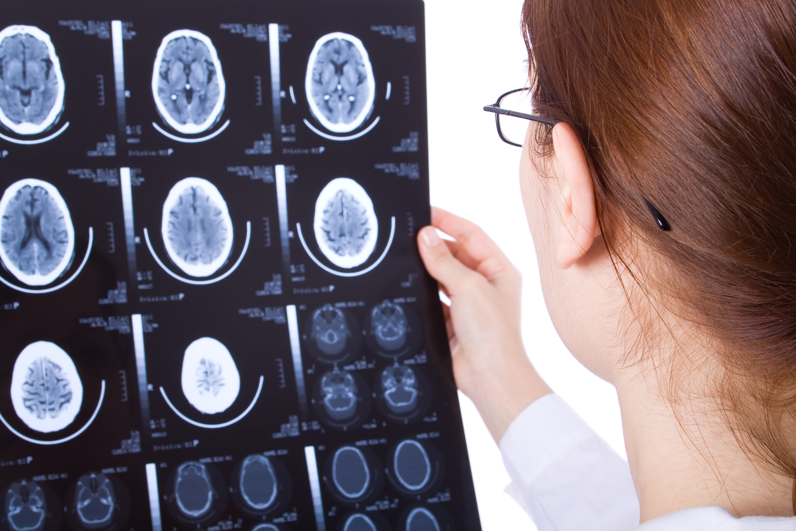 female doctor looking at brain injury scans